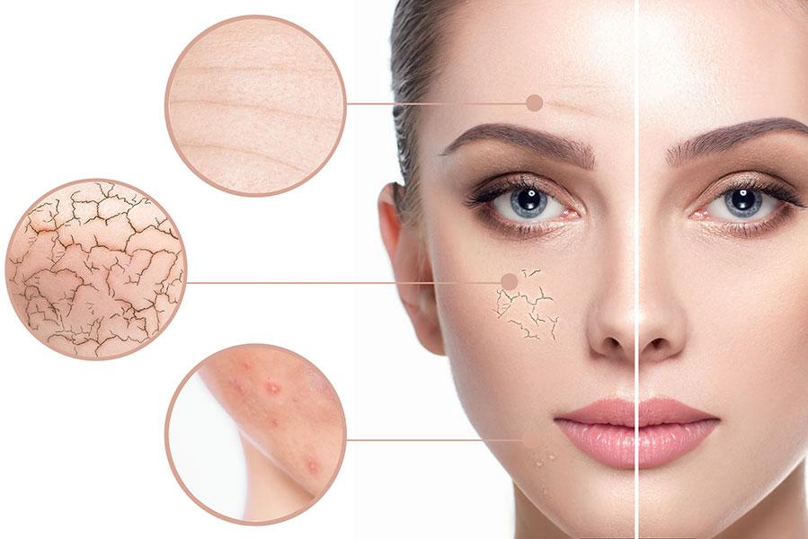 Read more about the article Der pH-Wert unserer Haut