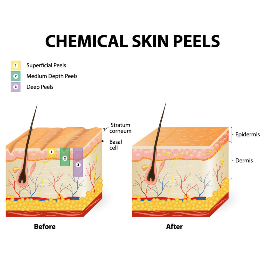 Hautaufbau und chemische Peelings